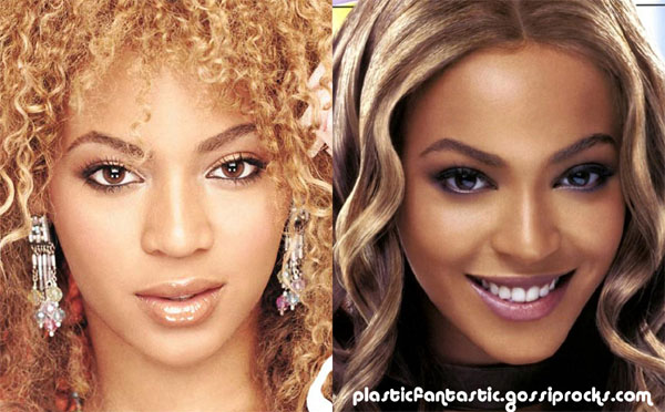 Beyonce Knowles nose job.