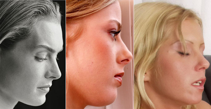 Brooke Shields, Mia Stone and another glamour model; profile view.