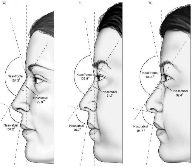 The side views of the average North American white woman (A), the attractive Korean-American woman (B) and the average Korean-American woman (C).