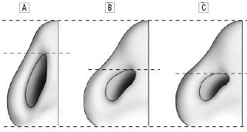 The basal views of the average North American white woman (A), the attractive Korean-American woman (B) and the average Korean-American woman (C).
